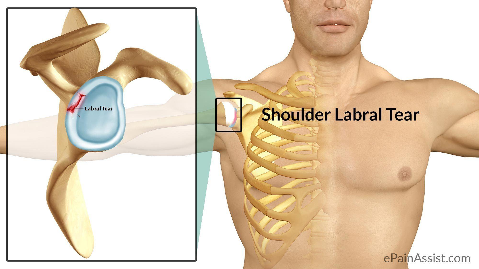 Shoulder Labrum Injuries